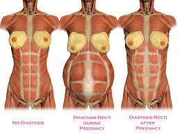 diastatis_recti_bodyfabulouspregnancyfitness