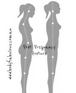 postpregnancy_mummytummy
