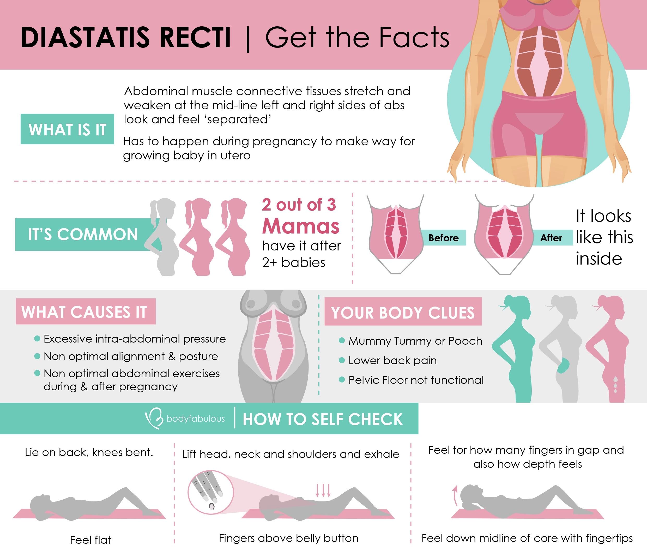 diastatis_recti_infographic_pregnancy_postpartum