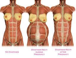 diastatis_recti_pregnancy_postpartum