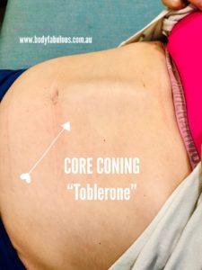 abdominal_coning_pregnancy