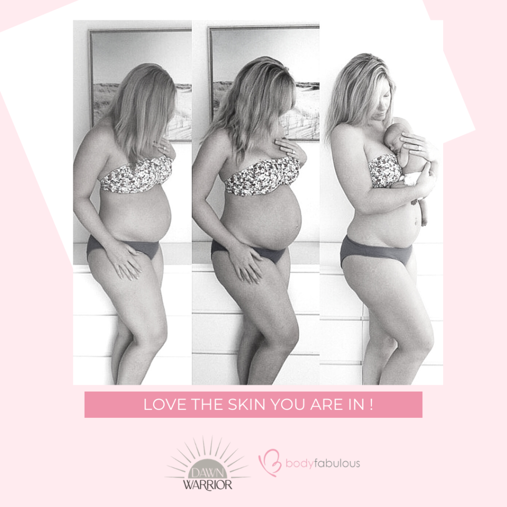 Love the Skin You're In: Embracing Your Body, Postpartum & Beyond
